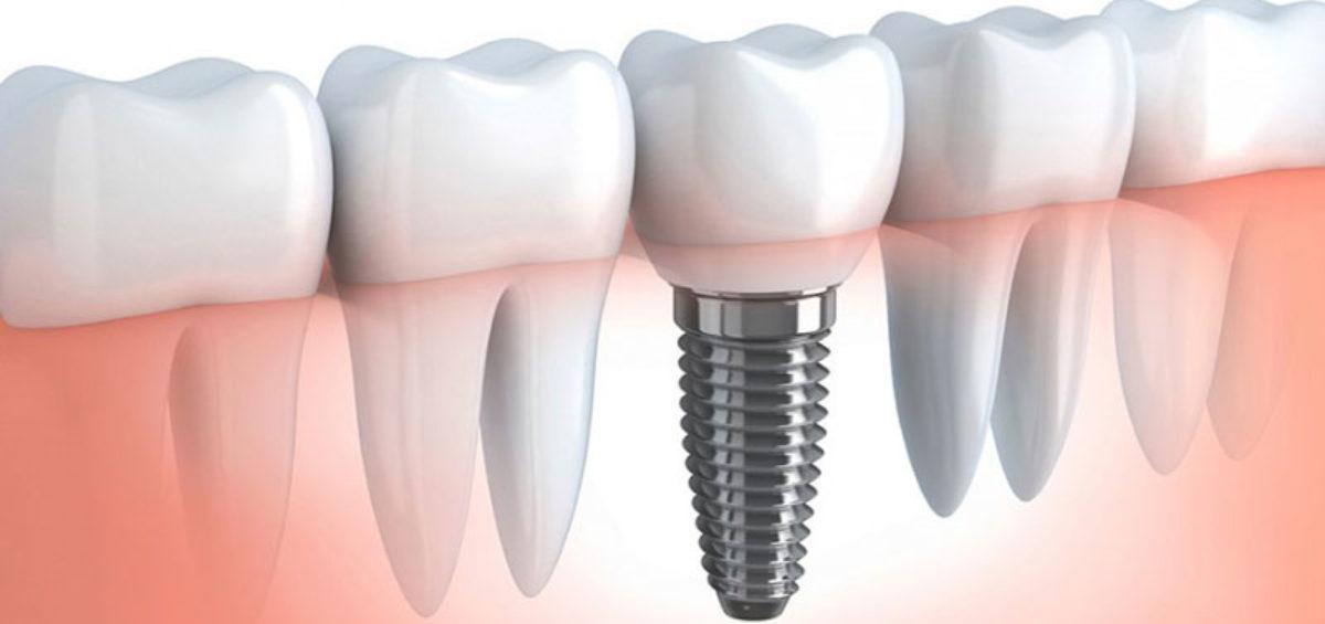 Implantologia Studio Dentistico Dott. Giovanni Salvetti - Studio Dentistico a Marina di Carrara